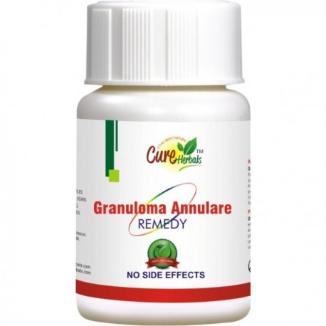 GRANULOMA ANNULARE HERBAL SUPPLEMENTS